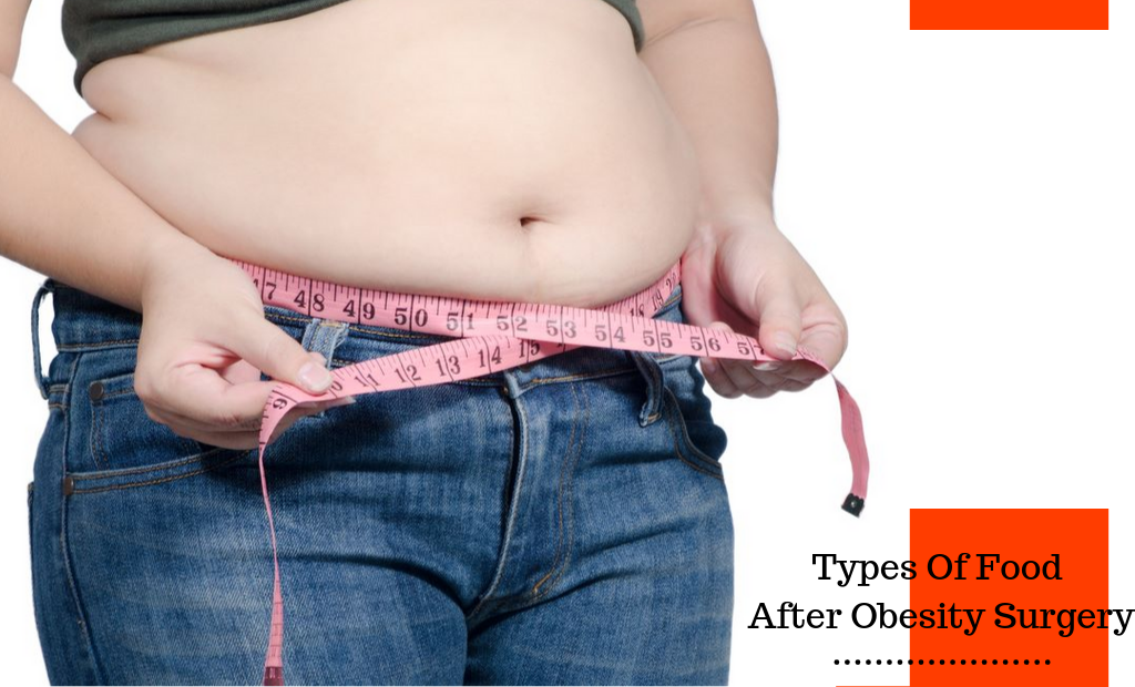 Types Of Food After Obesity Surgery