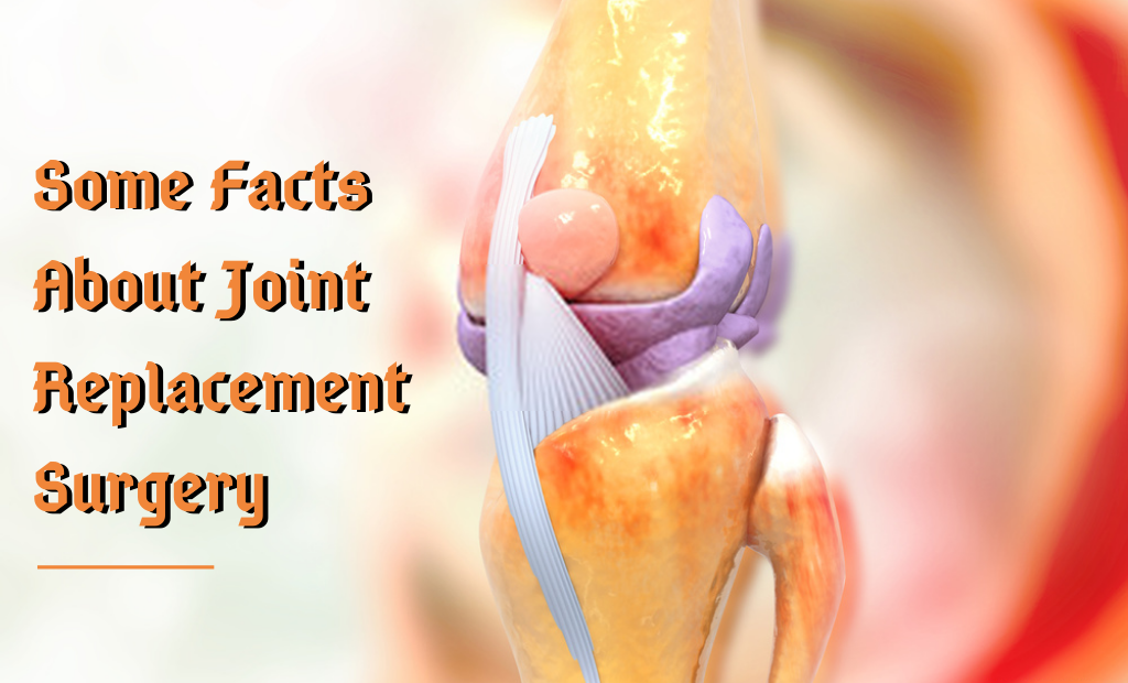 Some Facts About Joint Replacement Surgery